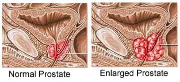 grote prostaat anabolen